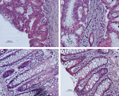 Expression of Bombesin receptor 2 in human colon