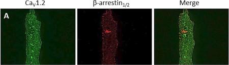 Anti-Cav1.2 (CACNA1C) Antibody