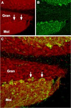 TRPC1 Blocking Peptide