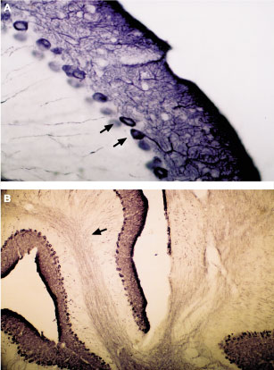 Expression of IP3R1 in mouse cerebellum