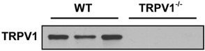 Anti-TRPV1 (VR1) Antibody