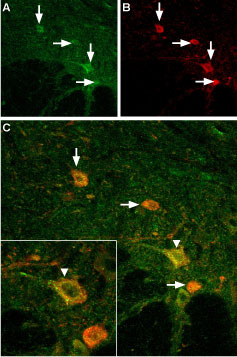 Expression of TRPV3 in mouse spinal cord