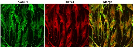Multiplex staining of TRPV4 and KCa3.1 in human BSM cells.