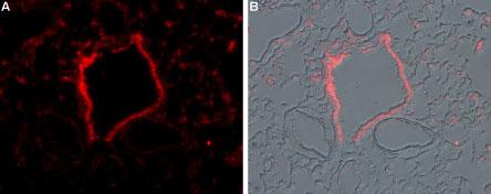 Anti-TRPM2-ATTO-594 Antibody