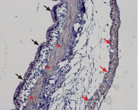 Expression of TRPM2 in rat lung