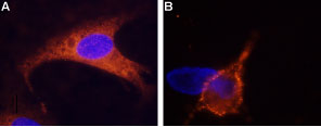 Expression of TRPM8 in rat DRG cells