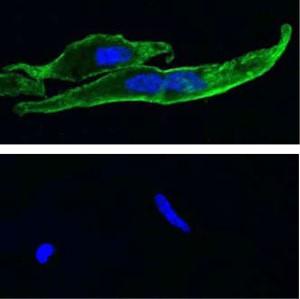 Anti-TRPM8 (extracellular) Antibody