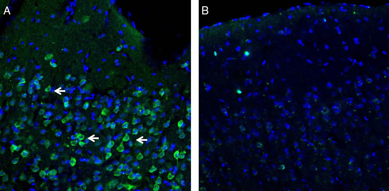 Expression of Orai1 in rat parietal cortex.