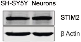 Anti-STIM2 Antibody