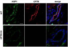 Anti-CFTR Antibody