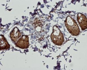 Expression of CB2 receptor in rat dermis