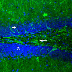 Expression of GABRA1 in rat brain