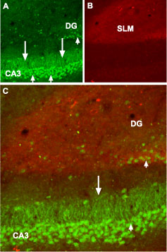 Expression of GABA(B) receptor 1 in mouse hippocampus