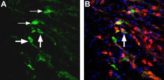 Expression of NMDA receptor 2D in rat reticular thalamic nucleus