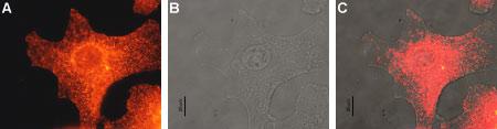 Expression of MC1R in human Malme-3M cells