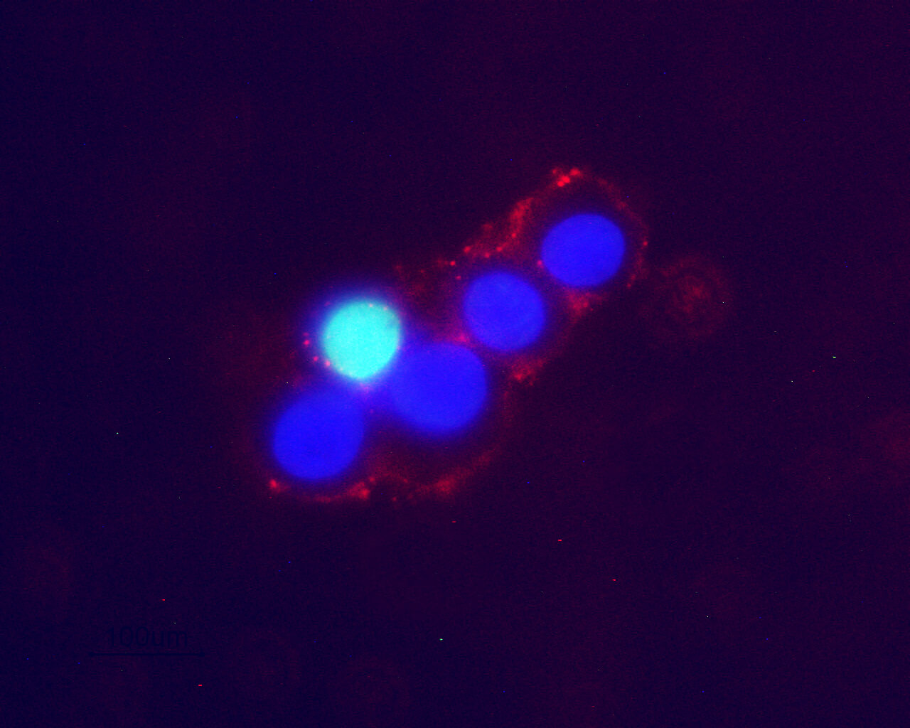 Expression of Noradrenaline transporter (NET) in live intact rat PC12 cells