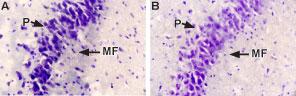 NGF Blocking Peptide