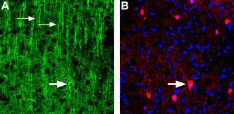 Anti-Nicotinic Acetylcholine Receptor α3 (CHRNA3) (extracellular) Antibody