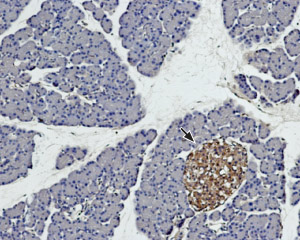 Expression of syntaxin 4 in rat pancreas