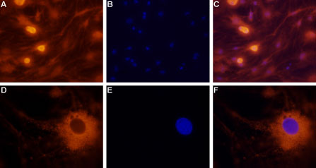 Expression of neuropeptide Y2 receptor in rat dorsal root ganglion cells