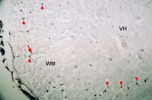 Anti-Neurotrophin 4 (NT-4) Antibody