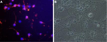 Expression of Nogo receptor in rat cerebellar granule