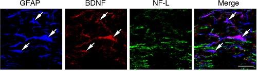 Anti-BDNF Antibody