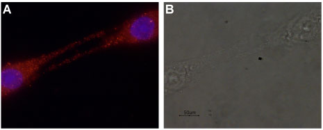 Expression of GDNF in rat C6 glioma cells