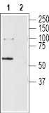 Western blot analysis of rat brain lysates:
