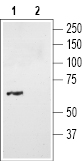 Western blot analysis of mouse brain lysates: