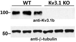 Anti-Kv3.1b (KCNC1) Antibody