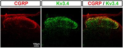 Anti-KCNC4 (Kv3.4) Antibody