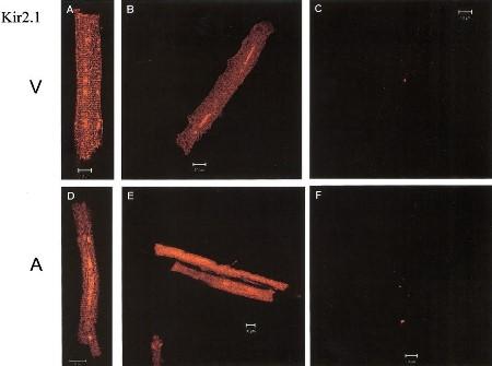 Anti-Kir2.1 (KCNJ2) Antibody