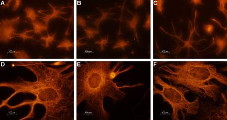 Expression of CNGA2 in rat cerebellum primary culture