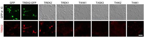 Anti-KCNK10(TREK-2) Antibody
