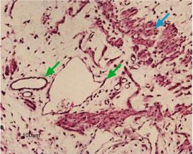 Anti-Kir6.1 (KCNJ8) Antibody