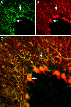Expression of KV1.5 channels in rat cerebellum