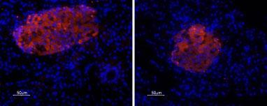 Expression of P2X7 Receptorin rat pancreas
