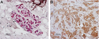 Expression of PAR-1 in normal human breast and human breast carcinoma