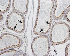Anti-Aquaporin 9 Antibody
