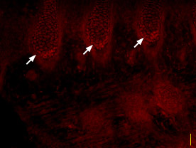 Expression of NaV1.3 in rat embryo DRG