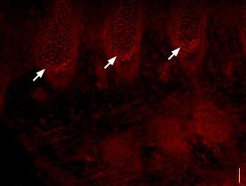 Anti-SCN3A (NaV1.3) Antibody