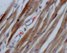 Expression of NaV1.5 in rat heart