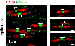 Expression of NaV1.6 in rat optic nerve