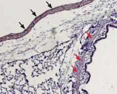 Expression of Sphingosine 1-phosphate receptor 1 in rat lung
