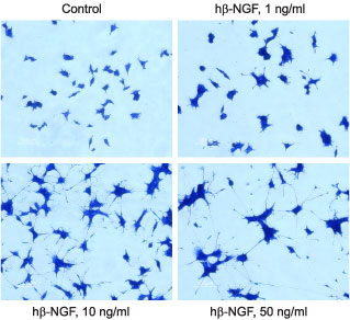 Alomone Labs Recombinant human beta-NGF protein promotes neurite outgrowth in PC12 cells.