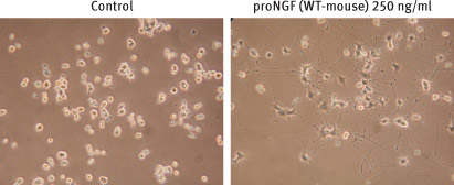 Alomone Labs Recombinant mouse proNGF protein promotes neurite outgrowth in PC12 cells.
