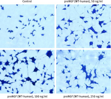 Alomone Labs Recombinant human proNGF protein promotes neurite outgrowth in PC12 cells.