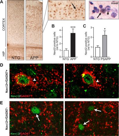 Anti-SCN2B (Navβ2) Antibody