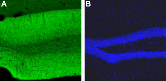 Expression of CaV1.2 in mouse hippocampus